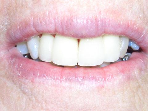 <p>笑顔の印象を決定づけるのは美しく整った白い歯!フューチャーデンタルは 世界最新技術を用いた治療によるコスメティック・デンタルの第一人者。 「歯を白くしたい」「歯と歯のすきまが気になる」「歯並びが悪い」… そんな方のために、あらゆる治療法から対処してくれる。更に美しい口元を目指す人には、 歯茎の高さを整えたりと言ったことも可能。</p>