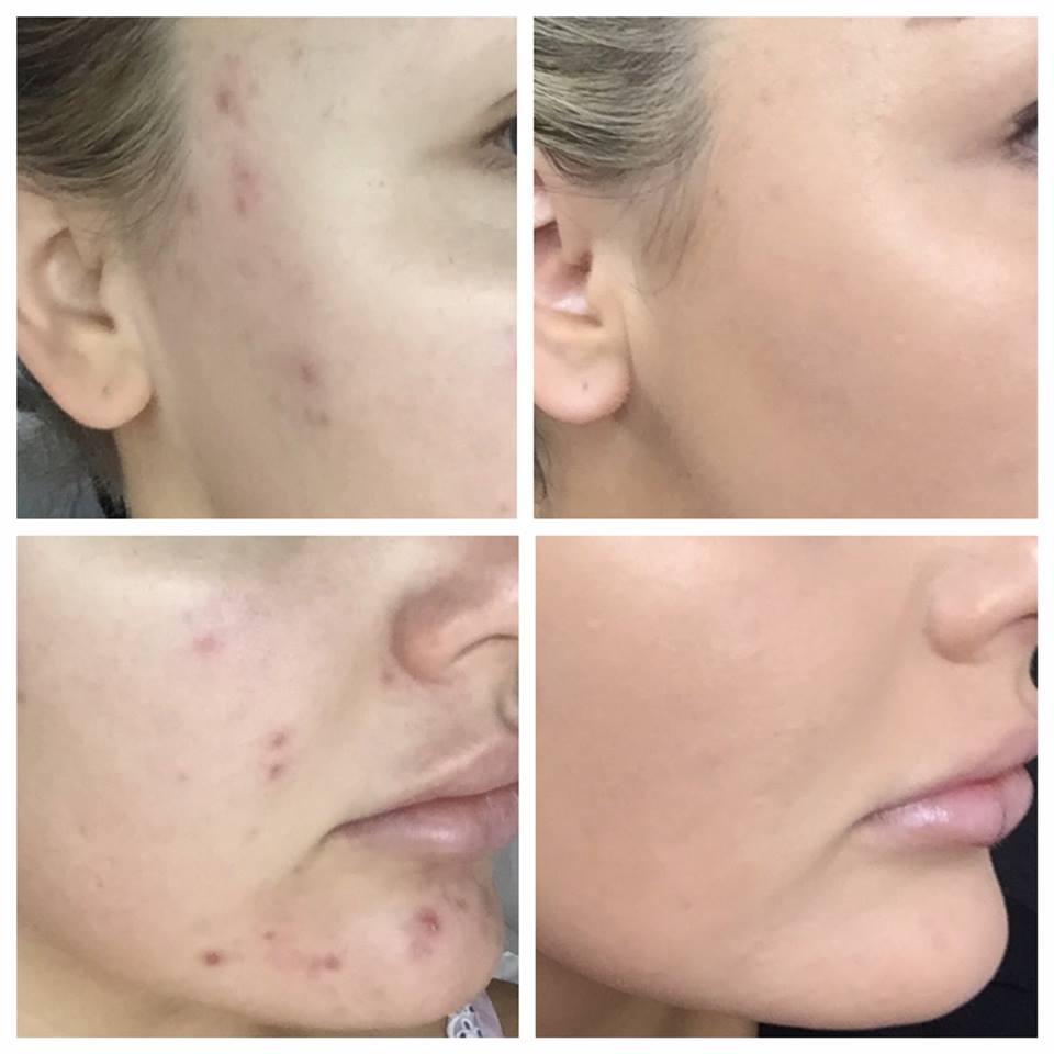 <p>★毛穴の汚れ・開きの除去 ★明るく輝くお肌に ★ニキビの除去、色素沈着の除去</p>